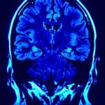מדיטציה משנה את מבנה המוח שלך